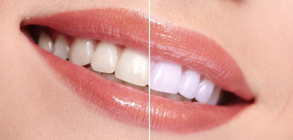 Teeth Whitening St. Pete