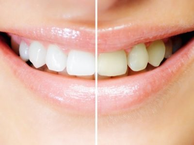 Teeth Whitening St. Petersburg Fl