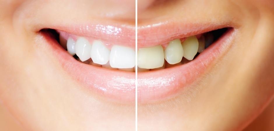 Teeth Whitening St. Petersburg Fl