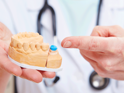 What is a Dental Crowns