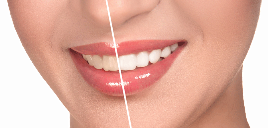 How to Whiten Porcelain Veneers