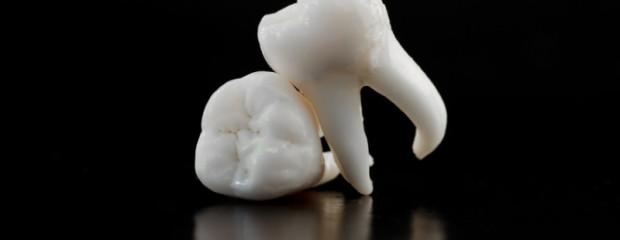 Why am I Missing Wisdom Teeth?