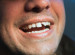 Ouch! I Chipped My Tooth! Should I See My Dentist?