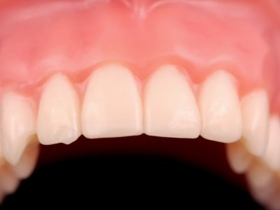 Why Taking Care of Your Gums is Vital