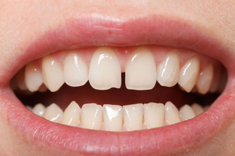 how to close gaps in teeth