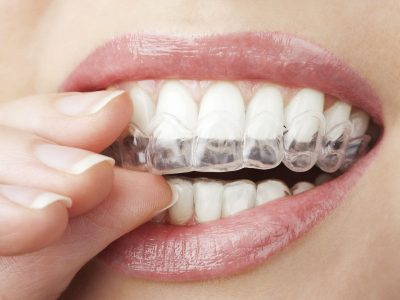 What is Oral Appliance Therapy?