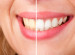Does At-Home Teeth Whitening Work?
