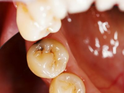 Four Facts You May Not Know About Cavities