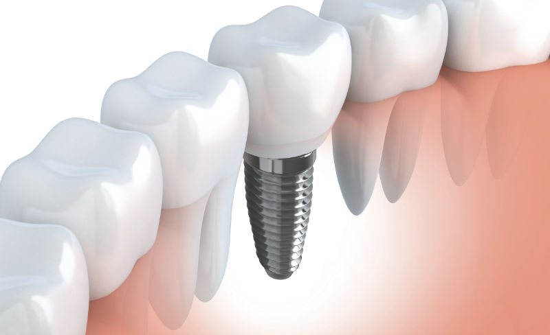 What Are Dental Implants Made Of?