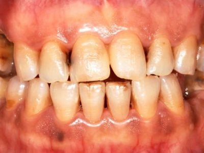 What Smoking Does to Your Teeth and Gums
