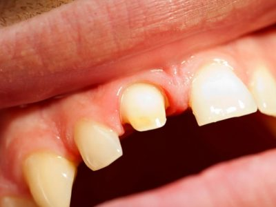 Will My Dental Crown Be Noticeable?