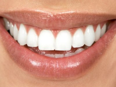 8 Tricks to Whiten Your Smile