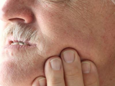 What Is Black Gum Disease?