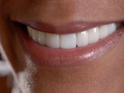 Who Needs Dental Veneers?
