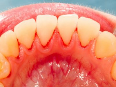 6-Things-About-Gingivitis