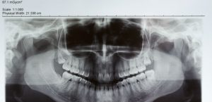 3 Benefits of Digital X-Rays in Dental Care