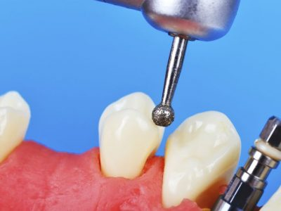 Prosthodontistry: Here's What You Should Know