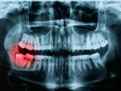 What Are Impacted Teeth?
